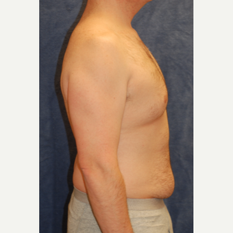 42 year old man treated with Male Breast Reduction and Liposuction of waistline before 3605082