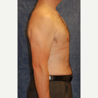 42 year old man treated with Male Breast Reduction and Liposuction of waistline after 3605082