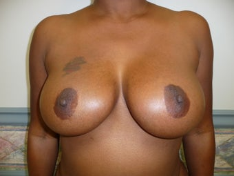 Ultimate Breast Lift - No Implants 7 year follow up after 488076