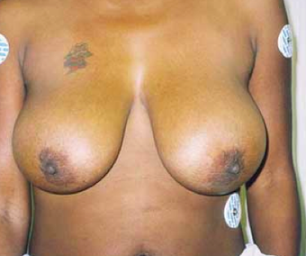 Ultimate Breast Lift - No Implants 7 year follow up before 488076