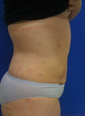 Laser Liposuction after 561222