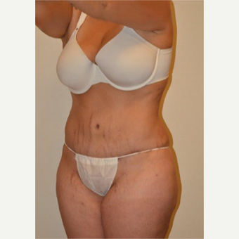 25-34 year old woman treated with Tummy Tuck after 3658520