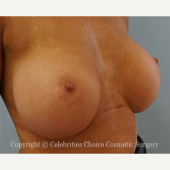 25-34 year old woman treated with Breast Augmentation after 3768618