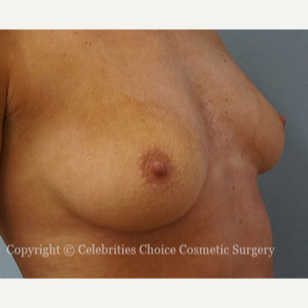 25-34 year old woman treated with Breast Augmentation before 3768618