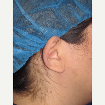 35-44 year old woman treated with Ear Surgery