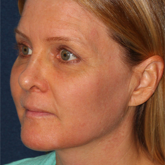 42 year old woman treated with Fraxel Dual laser for Melasma one treatment only after 3616967