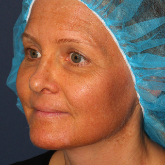 42 year old woman treated with Fraxel Dual laser for Melasma one treatment only before 3616967