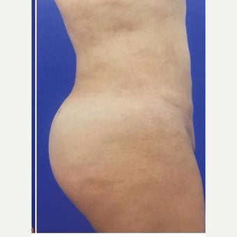 55-64 year old woman treated with Brazilian Butt Lift after 2464908