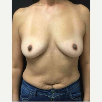 45-54 year old woman treated with Breast Implants before 3103475