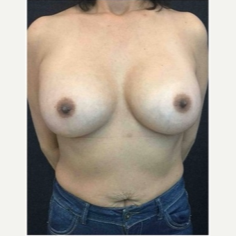 45-54 year old woman treated with Breast Implants after 3103475