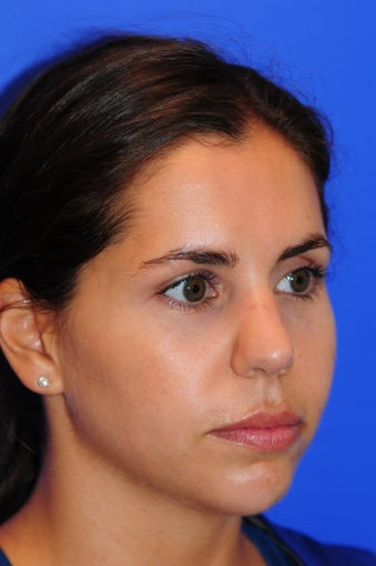 25-34 year old woman treated with Rhinoplasty 2467056