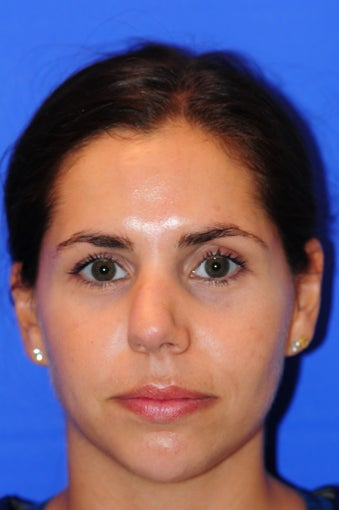 25-34 year old woman treated with Rhinoplasty before 2467056