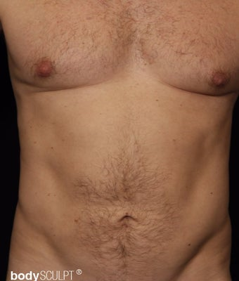 35-44 year old man treated with Smart Lipo after 3542281