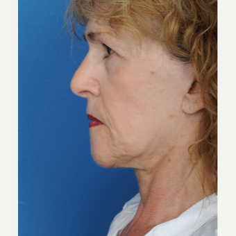 65-74 year old woman treated with a deep plane Facelift before 3466443