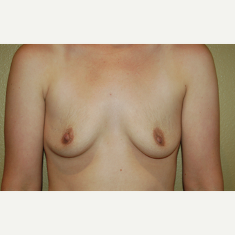 25-34 year old woman treated with Breast Implants before 3497913