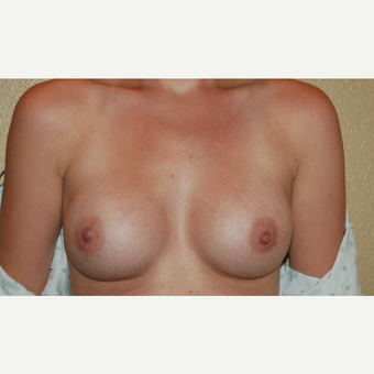 25-34 year old woman treated with Breast Implants after 3497913
