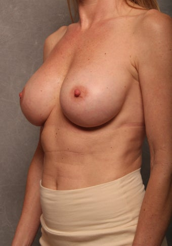 Breast Implant Revision after 1013493