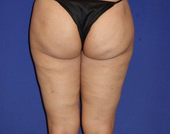 42 Year Old Female Treated with Cellulaze for Cellulite after 1192048