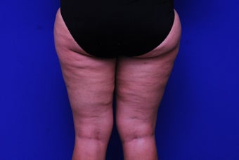 42 Year Old Female Treated with Cellulaze for Cellulite before 1192048