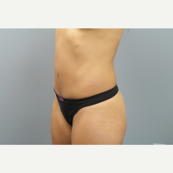 35-44 year old woman treated with Tummy Tuck after 3325587
