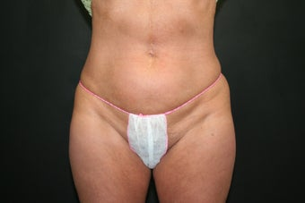 Mini Tummy Tuck before 340548