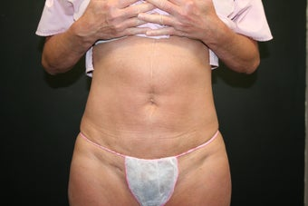 Mini Tummy Tuck after 340548