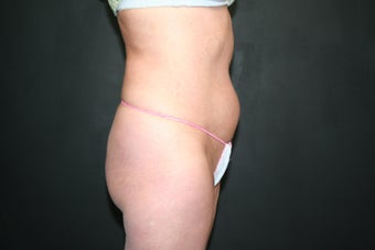 Mini Tummy Tuck 340548