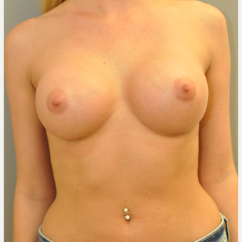 18-24 year old woman treated with Breast Augmentation after 3842324