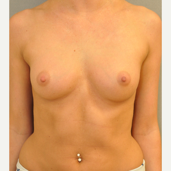 18-24 year old woman treated with Breast Augmentation before 3842324