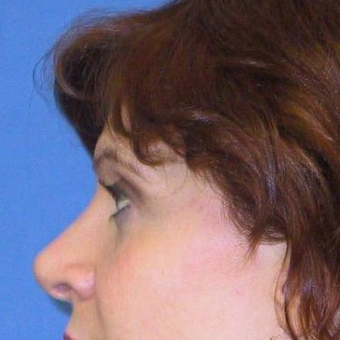 25-34 year old woman treated with Rhinoplasty after 3497245