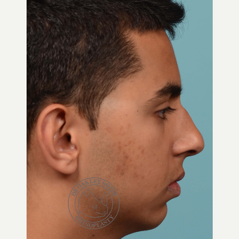 18-24 year old man treated with open Septoplasty/rhinoplasty before 3092828