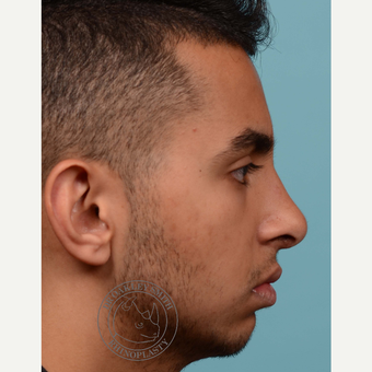 18-24 year old man treated with open Septoplasty/rhinoplasty after 3092828