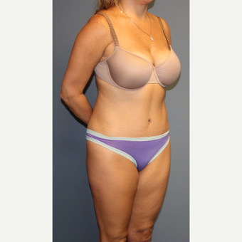 35-44 year old woman treated with Tummy Tuck after 3512830