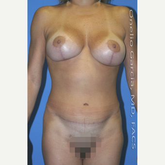 25-34 year old woman treated with Mommy Makeover after 3010193