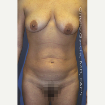 25-34 year old woman treated with Mommy Makeover before 3010193