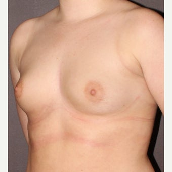 18-24 year old woman treated with Breast Augmentation before 2196184