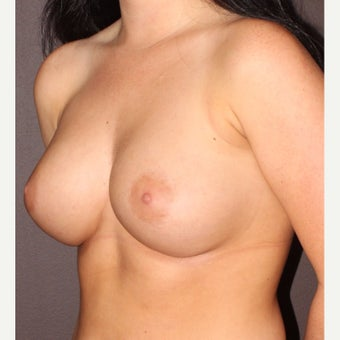 18-24 year old woman treated with Breast Augmentation after 2196184