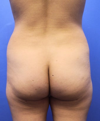Autologous Fat Transfer To Bilateral Buttocks