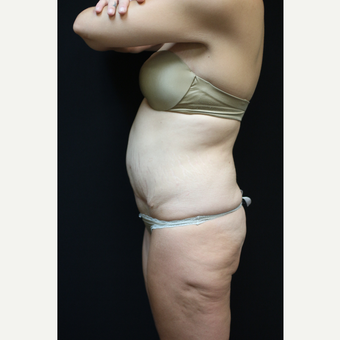 30 year old woman treated with Tummy Tuck after 3089301