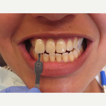 35-44 year old woman treated with Teeth Whitening before 3339130