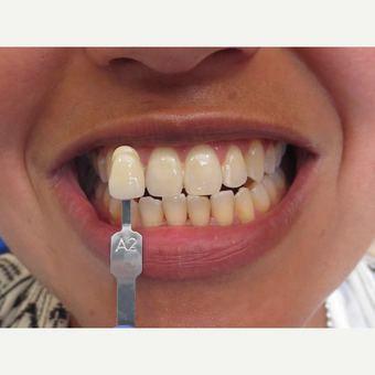 35-44 year old woman treated with Teeth Whitening after 3339130