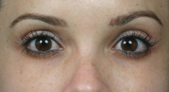 Latisse for Eyelashes after 310724