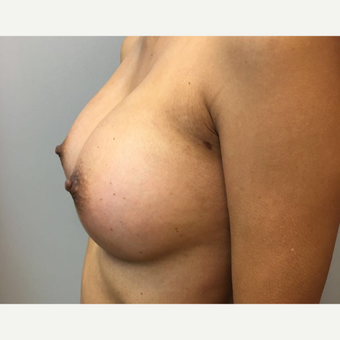 35-44 year old woman treated with Breast Augmentation after 3725964