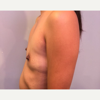 35-44 year old woman treated with Breast Augmentation before 3725964