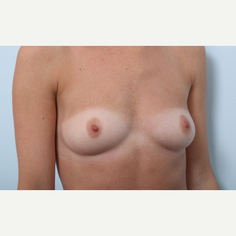 Breast Augmentation before 3345944
