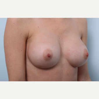 Breast Augmentation after 3345944