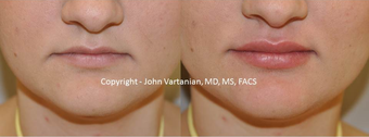 18-24 year old woman treated with Lip Augmentation before 3810273