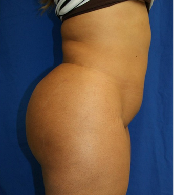 25-34 year old woman treated with Butt Augmentation after 1677186