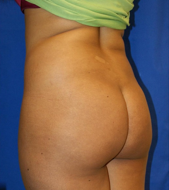 25-34 year old woman treated with Butt Augmentation 1677186