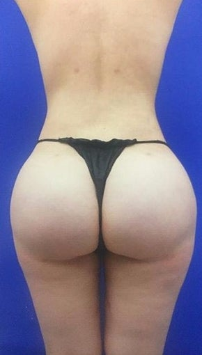 18-24 year old woman treated with Brazilian Butt Lift  after 2464576